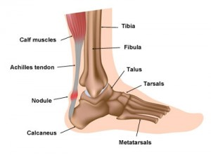 Achilles Tendonitis - advice and